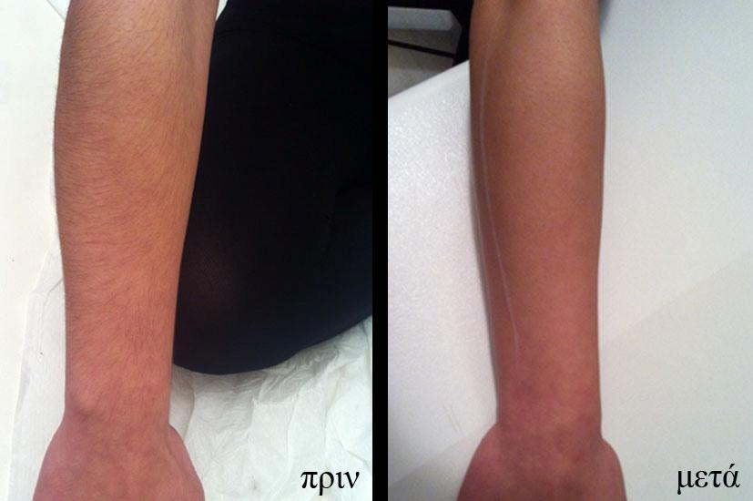 laser depilazione arms