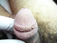 Κονδυλώματα επί περιβαλανικών αδένων 1