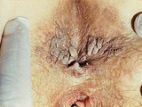 Κονδυλώματα στην περιοχή του πρωκτού 2