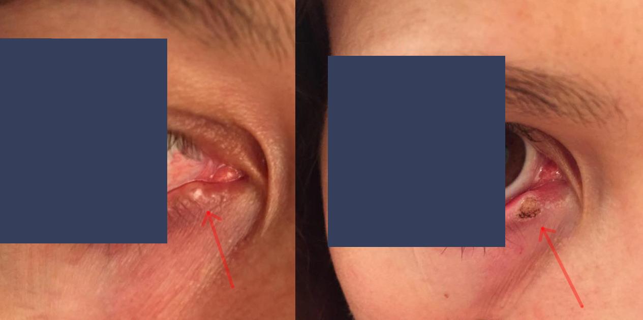 HPV ματια
